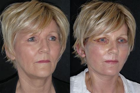 facelifts for women over 60 facelift pictures women over 60 botox for over 60 karen 60