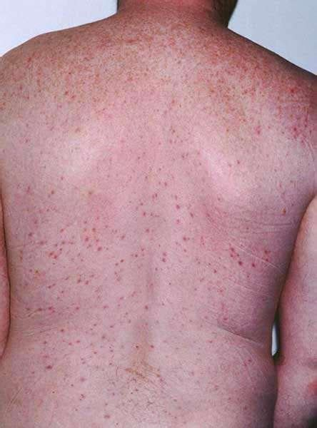 grid pattern skin rash folliculitis inflammation of hair follicles patient
