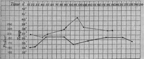 high pulse rate after c section digitalinum digitalin not officinal part 2