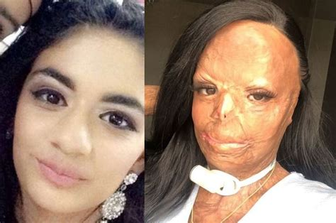 gara gara pakai syampu  singkirkan kutu gadis alami luka terbakar tahap tiga selepas