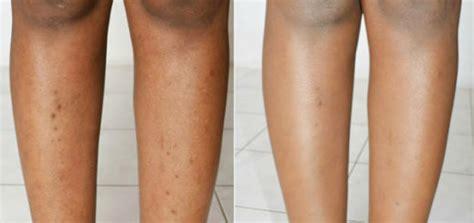 ingrown hair scars on stomach legs