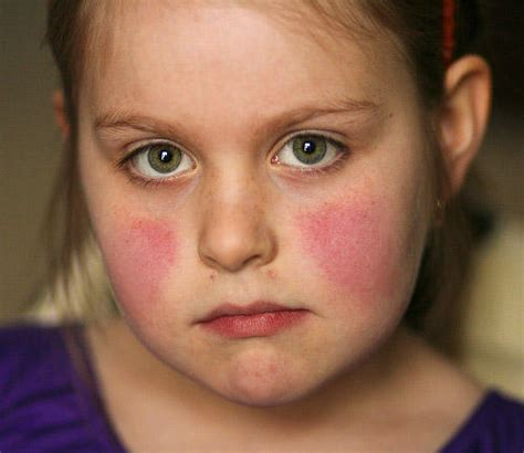 sle of will lupus rash pictures symptoms causes treatment diagnosis diseases pictures
