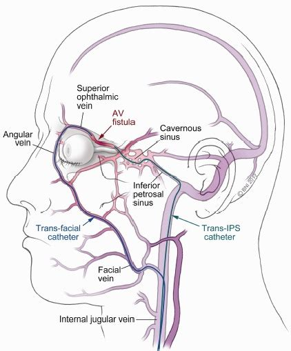 Pial Arteriovenous Fistula A Review Of Literature by Ahead Of Print Transvenous Embolization Of Orbital Avf Neurosurgery Report