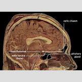 Hypothalamus   350 x 250 jpeg 20kB