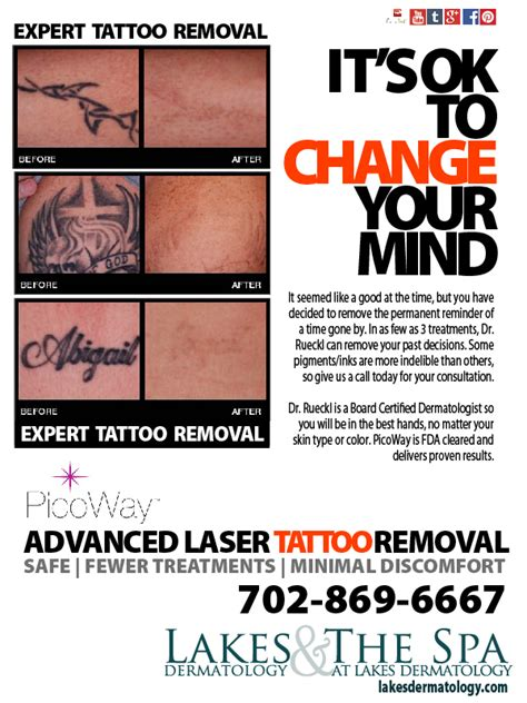 the tattoo removal experts expert removal dr victor rueckl board certified