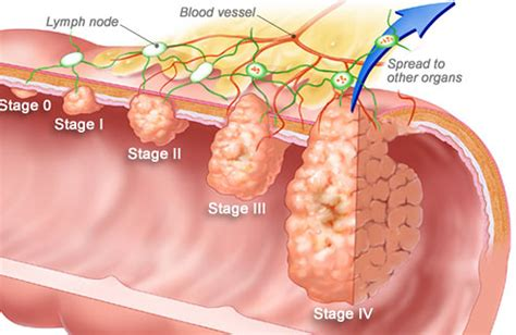 color cancer rectal bleeding and bleeding from the rectum causes and