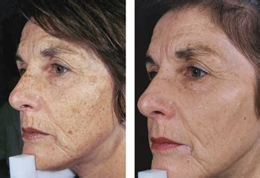 e one ipl session before and after on man and woman face aft photofacial the museum spa