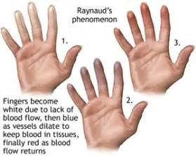 If You Go Blind Can You See Again Why Do My Hands Turn Blue In The Cold Raynaud S