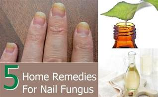 home remedies for toe fungus 5 simple home remedies for nail fungus