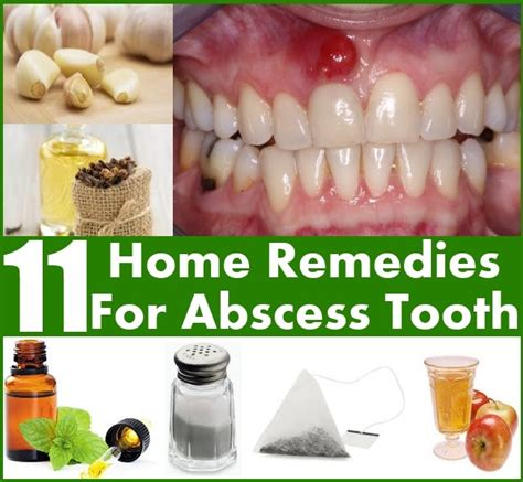 11 home remedies for abscess tooth diy home things