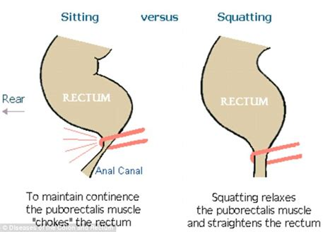 What Causes Stools Right After by Humans Should Squat To Poo Not Sit Says Giulia Enders Microbiologist Daily Mail