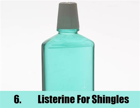 home remedies for shingles treatments cure for