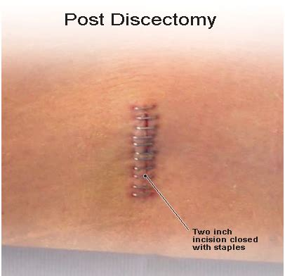 slipped disc surgery cost herniated disc neck surgery images
