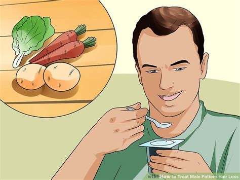 male pattern hair loss diet 3 ways to treat male pattern hair loss wikihow