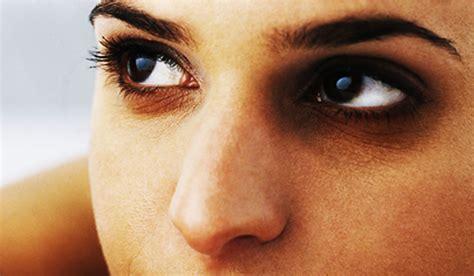 occhiaie alimentazione rimedi per le occhiaie da quelli naturali al trucco