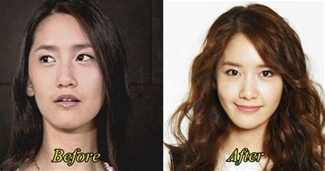 lee seung gi plastic surgery yoona plastic surgery before and after pictures plastic