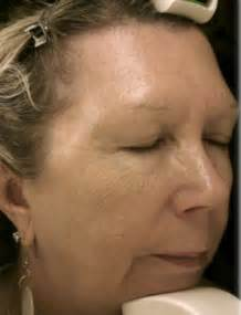 hair style for mature face with sagging double chin hairstyles for women with sagging jowls