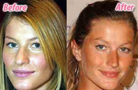 blake scarlett gisele and more celebs plastic surgery gisele bundchen plastic surgery before after nose job