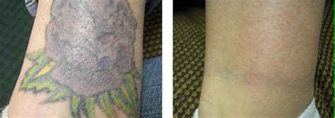 tattoo removal cream before and after 25 tattoo removal before and after pictures inkdoneright