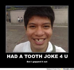 Missing Teeth Meme - gap teeth jokes kappit