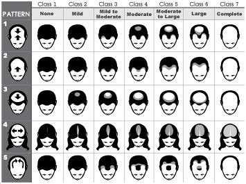 ludwig scale female androgenetic alopecia male pattern baldness orlando hair transplant clinic