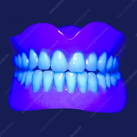uv light for teeth model teeth in uv light stock image f012 2811 science