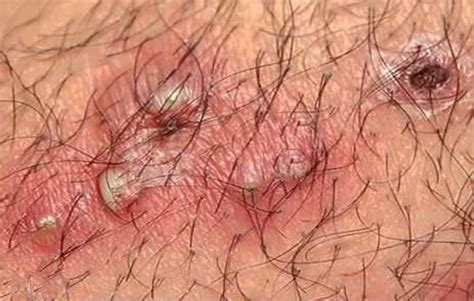 infected ingrown hair in groin area infected ingrown hair pictures cyst causes treatment