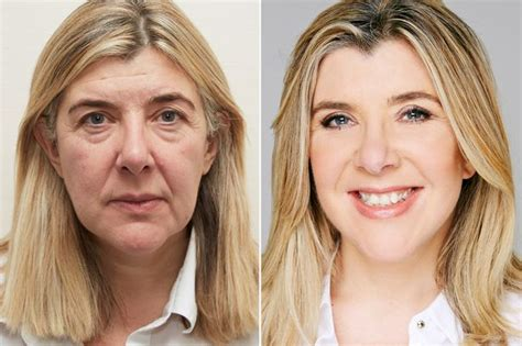 what corner does the st go on quot i look like me again quot how simple facelift surgery can