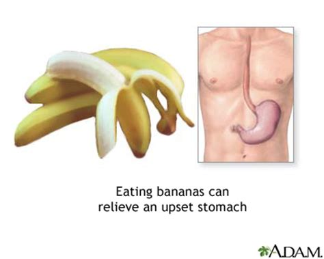 Stomach And Mucus Stool by Bananas And Nausea Medlineplus Encyclopedia Image