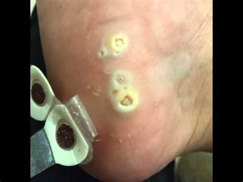 how to remove planters wart how to remove plantar warts naturally