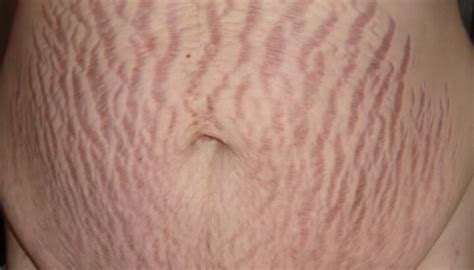 Stretch Marks by Can Stretch Marks Go Away At Rss 6