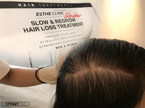hair loss treatment reviews estheclinic slow regrow hair loss treatment review