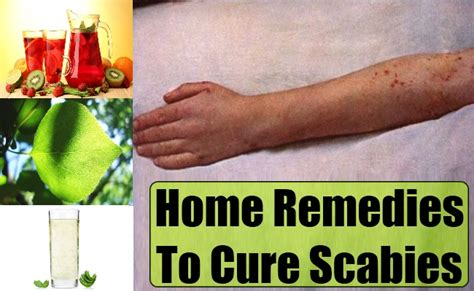 home remedies to treat scabies how to cure scabies