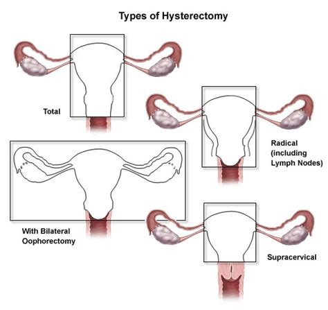 hysterectomy diagram laparoscopy purpose procedure recovery september 2015