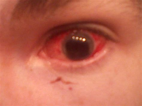 hot hit in the eye my buddy s eye that got hit by a paintball about ten years