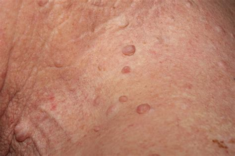 skin tags neck side