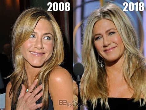 Aniston Second Nose For More Baby by Aniston Plastic Surgery Before And After Photos