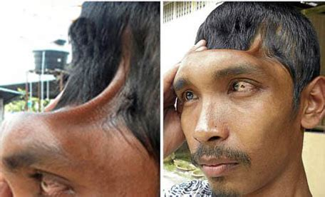 meet the half head man as he explains why he has half a head video indian with half a skull alive well and hopeful of bright