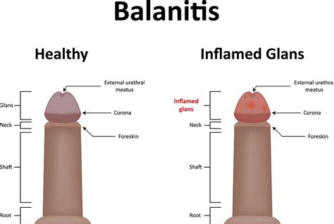 Might Contract A Non Std Related Infection by Yeast Infection In Symptoms Treatment Std Balanitis