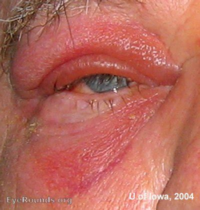 powered by mybb infections in the back preseptal cellulitis www pixshark com images galleries