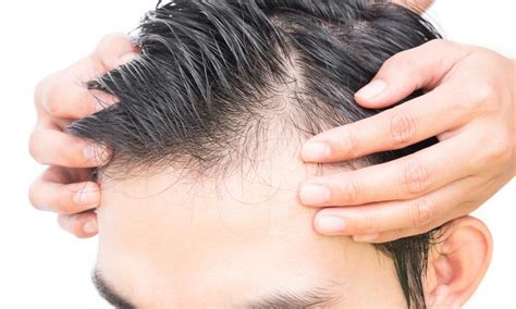 hair loss not male pattern baldness male pattern baldness causes and treatment