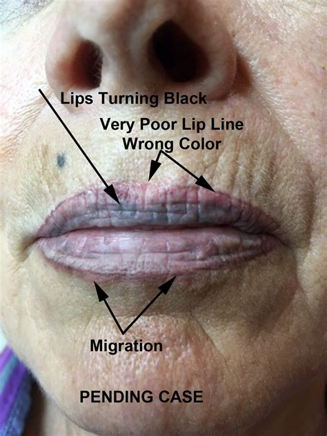 lip tattoo removal permanent makeup removal cases archives removal