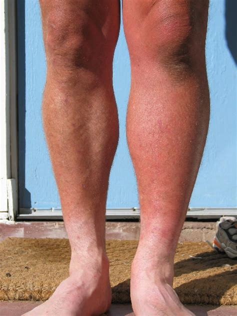 sore legs and after standing suffering from swelling in left leg its cause and