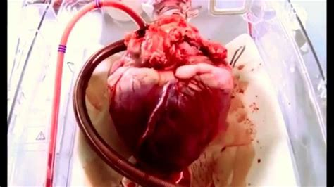 el corazn de una 1520265506 asi funciona el corazon youtube
