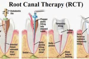 decoding root canal treatment mdental hungary