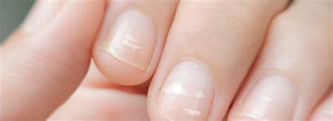 max nagel nagels max vandaag