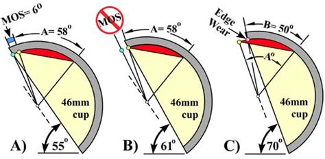wear pattern definition margin of safety algorithm used with eos imaging to