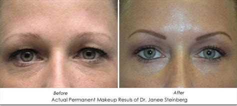 eyeliner tattoo allergic reaction permanent makeup allergic reactions saubhaya makeup
