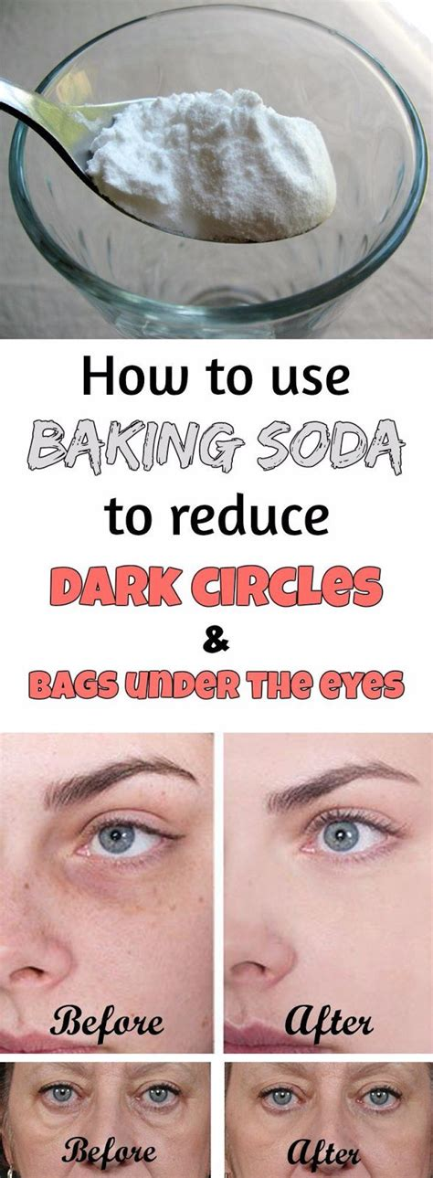 best eye treatment 17 best ideas about reduce circles on