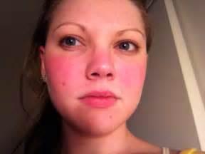 photo rashes lupus chronicallyjill